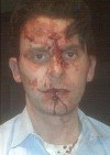 Chicago police beating victim Matthew Clark